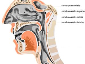 Causes of Sinus Infection - Sinusitis
