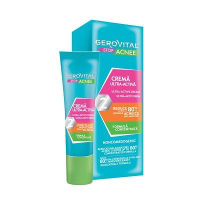 ultra active gel creme acne Gerovital