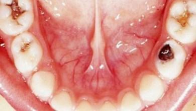 صورة علامات في الفم تدل على إصابتك بمرض خطير