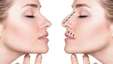 صورة الآن يمكنك تجميل أنفك دون إبرة أو جراحة في خمس دقائق