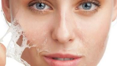 صورة أهم 3 علاجات طبية للحصول على بشرة نجمات هوليوود