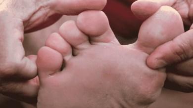 صورة حلول لعلاج فطريات القدم في فصل الصيف