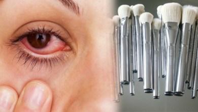 صورة أعراض وأمراض حساسية العيون الناتجة عن أدوات التجميل