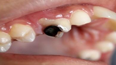صورة ما معنى التسوّس الداخلي للأسنان وما هي أضراره؟