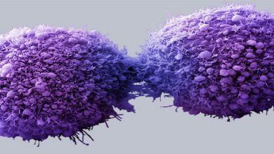 صورة الإنتحار… وسيلة جديدة لعلاج السرطان