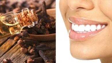 صورة القرنفل لعلاج أمراض اللثة وتسوس الأسنان
