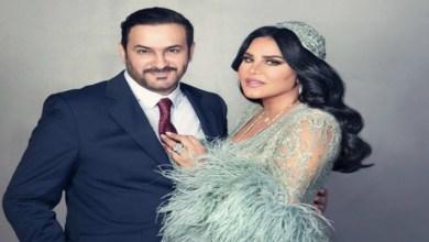 صورة تفاصيل إصابة زوج الفنانة الإماراتية أحلام
