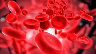 صورة ملف شامل عن فقر الدم.. الأعراض والأسباب وطرق العلاج