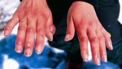 صورة أساب تورم الأصابع في فصل الشتاء ونصائح لعلاجها