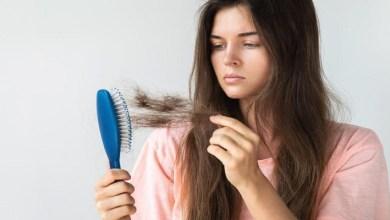 صورة نصائح وخلطات طبيعية لعلاج مشكلة تساقط الشعر