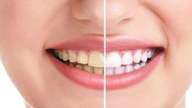 صورة 5 عوامل تتسبب في إصفرار أسنانك