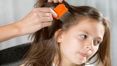 صورة حل سحري للتخلص من مشكل القمل عند الأطفال