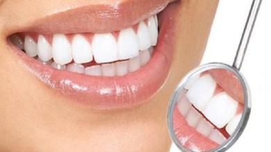 صورة وصفات طبيعية لعلاج اصفرار الأسنان