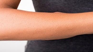 """صورة ما هي أسباب الإصابة بمرض جلد """"الوزة""""؟"""