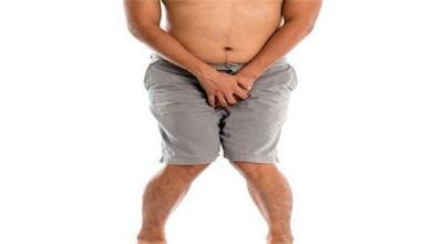 صورة داء الزهري الجنسي وتأثيره على صحة الرجال