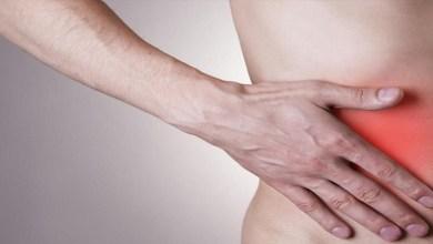 صورة ما هي أسباب ومضاعفات التهاب الزائدة؟