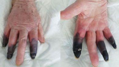 صورة كورونا يتسبب في بتر أصابع سيدة بعد تعرضها لجلطات وغرغرينا