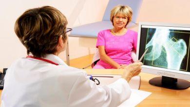 صورة أسباب الإصابة بهشاشة العظام بعد سن الـ40 عاما عند السيدات
