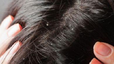 صورة وصفات طبيعية للتخلص من قشرة الشعر