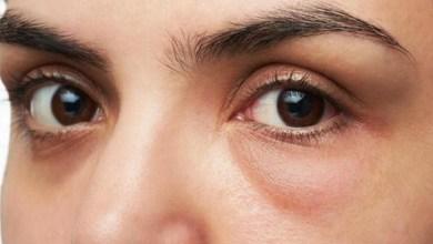 صورة طريقة طبيعية وسهلة للتخلص من إرهاق العينين