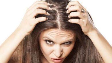 صورة وصفات لعلاج حكة فروة الرأس وتساقط الشعر