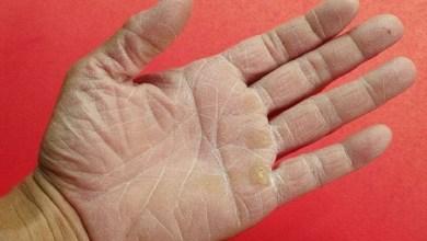 صورة منها الحالات المرضية.. عوامل تؤدي إلى جفاف اليدين