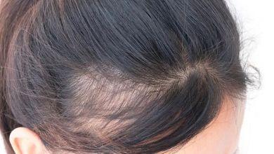 صورة وصفات القطران لإنبات الشعر