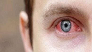 صورة التهاب الملتحمة.. مرض معدي خطير على صحة العين