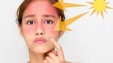 صورة ملف الأسبوع.. نصائح ووصفات طبيعية لحماية البشرة من الشمس