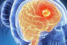 صورة احذري.. هذه الأعراض مؤشر لإصابتك بسرطان الدماغ