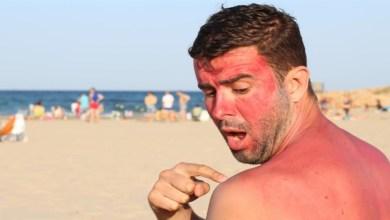صورة وصفات طبيعية لعلاج حروق الشمس
