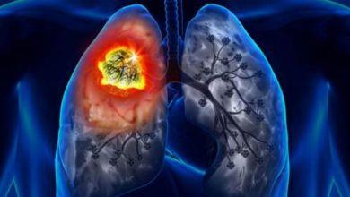 صورة 10 علامة غير متوقعة تدل على الإصابة بسرطان الرئة