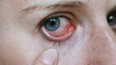 صورة أنواع التهاب القرنية وطرق علاجه