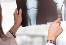 صورة كيف تحمي نفسك من هشاشة العظام؟