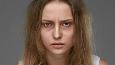 صورة علامات يكشفها وجهك عن صحتك.. أخطرها التهاب الكبد