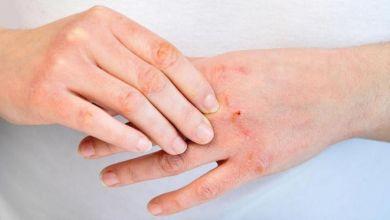 صورة تعرفي على علاج جفاف الجلد لمرضى السكر