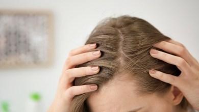 صورة كيف تقي نفسك من الإصابة بحبوب الشعر؟