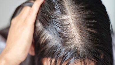 صورة أفضل الاقنعة لعلاج الشعر الخفيف