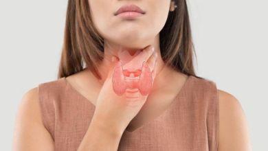 صورة أضفي 4 فواكه لنظامك الغذائي للتحكم في مستوى هرمونات الغدة الدرقية