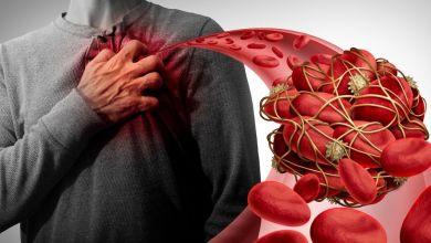 صورة 6 علاجات طبيعية تساعدك في منع تجلط الدم