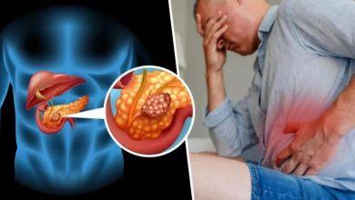 صورة 8 علامات خفية تكشف الإصابة بسرطان البنكرياس
