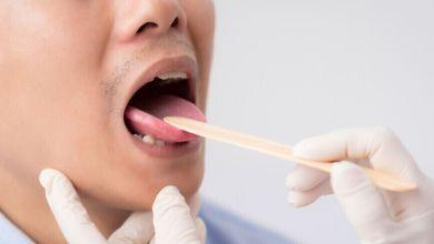 صورة علامات موجودة فى الفم تشير إلى ارتفاع نسبة السكر فى الدم