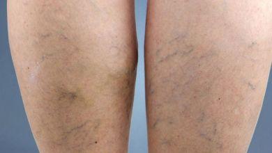صورة أعراض دوالي الساقين وطرق الوقاية منه
