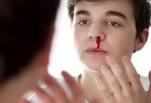 صورة تعرف إلى الأسباب الأكثر شيوعاً لنزيف الأنف
