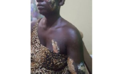 Man Burns Girlfriend With Hot Electric Iron For Taking His GH¢7