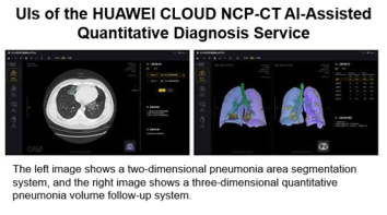 HUAWEI CLOUD Launches AI-Assisted Diagnosis for COVID-19, Producing CT Quantification Results in Seconds