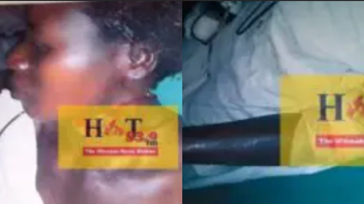 65-year-old man chops his second wife with cutlass [Photos]