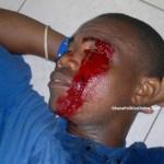 Victim of LMVC police brutality loses one eye
