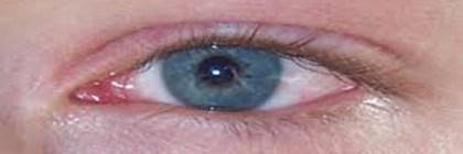 डोळे येणे