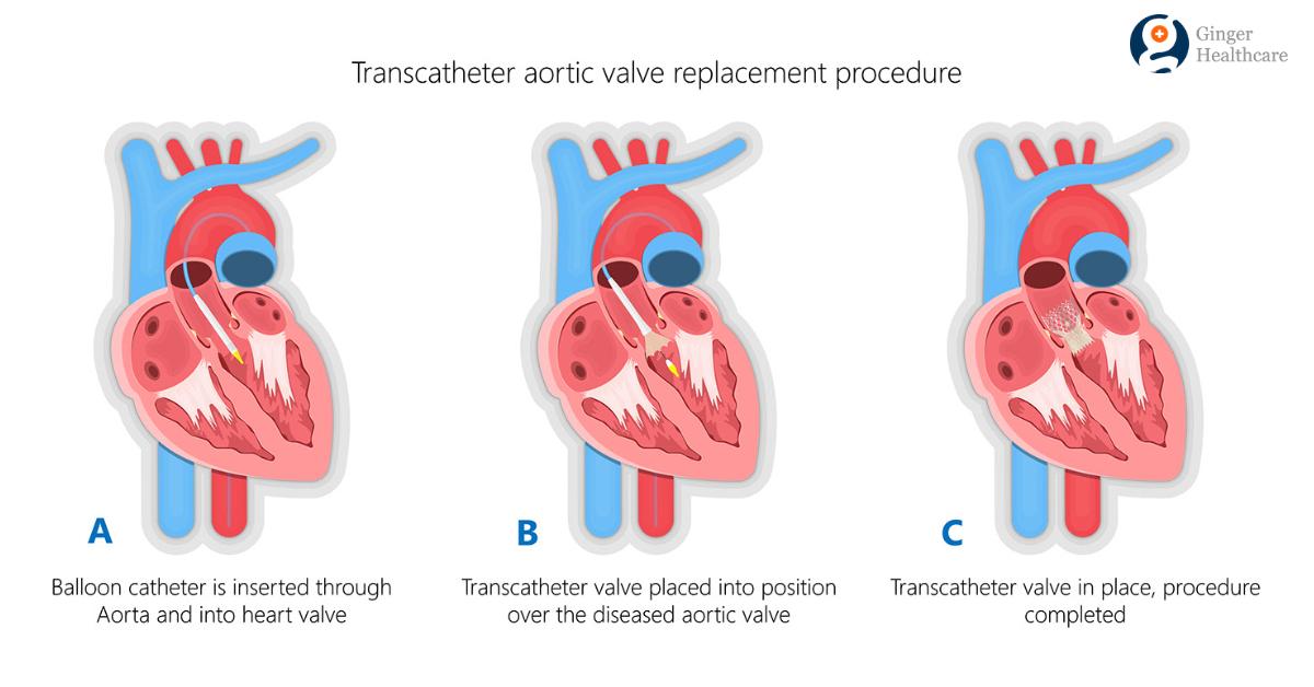 TAVR Procedure: Indications Diagnosis Procedure explained